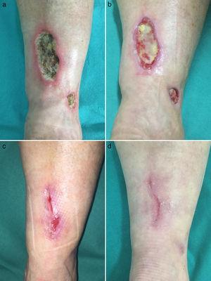 a) Úlceras cutáneas de fondo necrótico afectando a miembros inferiores. b-d) Cicatrización progresiva de las úlceras tras instauración de rivaroxabán oral.