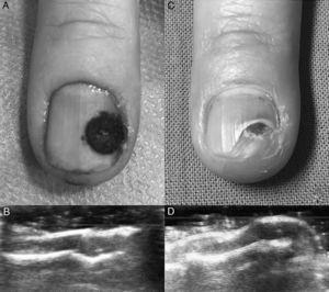 A) Resultado clínico inmediato tras cirugía. B) Comprobación ecográfica inmediata de resolución del tumor. C) Resultado clínico a las 2 semanas de la cirugía. D) Comprobación ecográfica a las 2 semanas de extirpación del tumor.