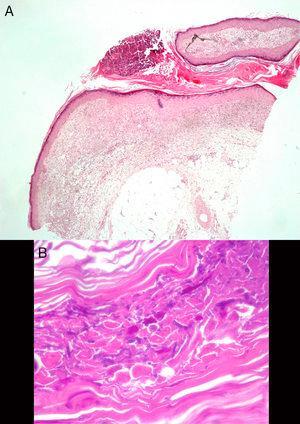 A) Trayecto sinusal relleno por material hiperqueratósico, con una pústula en superficie (H&E ×20). B) Tinción de PAS: estructuras micóticas en forma de esporas e hifas ramificadas, en ángulos de 45°.