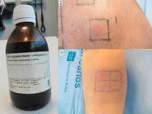 A) Aceite de neem.B) Lectura de pruebas epicutáneas a las 96h para aceite de neem (+++). C) Lectura a las 96h de las diluciones al 25 y 50%.