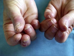 Lesiones clínicas características en las esteticistas: pulpitis seca fisurada de los primeros dedos de ambas manos con predominio de la mano dominante.