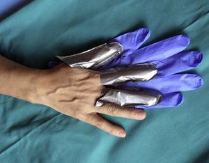 Correcta protección de la mano dominante con dediles de guantes 4H®. Encima se deben poner guantes de nitrilo para mantener los dediles en el sitio y favorecer la destreza para este tipo de tarea.