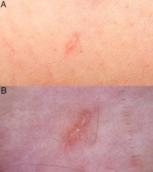 Ejemplos de fotografías realizadas con el EF-M 28mm f/3,5 Macro IS STM. A)Fotografía macro a una distancia focal corta. B)Imagen de dermatoscopia correctamente centrada, sin el halo oscuro periférico y sin pérdida de campo de visión.