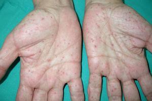 Pits palmares en paciente con síndrome de Gorlin.
