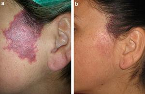 a) Malformación capilar violácea sin hipertrofia asociada. b) Mejoría marcada tras 3 sesiones de tratamiento.