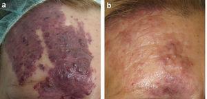 a) Malformación capilar violácea con hipertrofia de partes blandas asociada. b) Mejoría obtenida tras 3 sesiones de tratamiento.