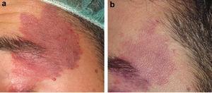 a) Malformación capilar de coloración roja sin hipertrofia asociada. b) Aclaramiento parcial tras 4 sesiones de tratamiento.