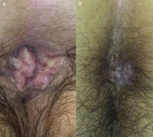 Caso 2. A. Se observa una lesión excrecente en la región perianal. B. Se observa la evolución de dicha lesión tras la infiltración de una dosis de 0,3ml de cidofovir intralesional.
