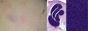 a. Dermatoscopia (DermLite II Pro HR, 3Gen): zona azul-violácea central, rodeada de un halo eritematoso. b. Tumoración bien delimitada, polilobulada, situada en la dermis (H-E×2). c. La tumoración está constituida por una proliferación epitelial bifásica, que consta de células de pequeño tamaño dispuestas alrededor de células con citoplasma más amplio y claro que forma estructuras ductales. Ausencia de atipias o figuras de mitosis (H-E×20).