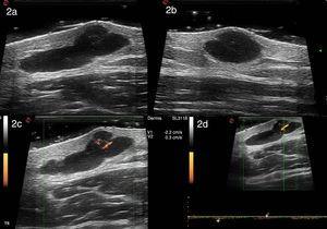Ecografía de alta resolución con sonda de 22MHz (MyLab class C, Esaote): imagen bien delimitada anecogénica polilobulada, con un septo en su interior, localizada en la dermis y la hipodermis que presenta refuerzo posterior y mide 11,9mm de diámetro transversal (a) y 5,9mm de diámetro longitudinal (b). Con power Doppler se evidencia escasa vascularización intralesional con vasos arteriales y venosos que miden entre 0,2 a 0,4mm de espesor (c). En el Doppler espectral los vasos arteriales presentaban un pico sistólico máximo de 2,2 cm/seg (d).
