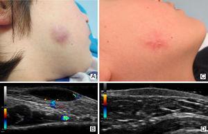 Caso 1: GAFI en varón de 6 años. Imagen clínica (1A) y ecográfica (1B) de un GAFI en su fase activa o inflamatoria. Imagen clínica (1C) y ecográfica (1D) de la misma lesión, 6 meses más tarde.