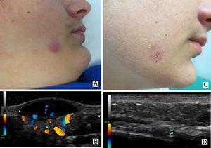 Caso 3: GAFI en varón de 12 años con lesiones cutáneas de rosácea asociadas. Imagen clínica (3A) y ecográfica (3B) de un GAFI en su fase activa o inflamatoria. Imagen clínica (3C) y ecográfica (3D) de la misma lesión, 6 meses más tarde.