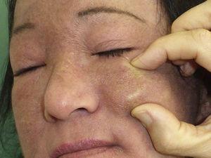 Placa de consistencia pétrea y bordes bien delimitados, de unos 3cm de diámetro, en ambas regiones malares.