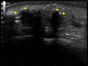Imagen de la ecografía dermatológica (modo M, sonda 18MHz), donde se aprecian lesiones hiperecogénicas (flechas amarillas) con sombra acústica posterior en el tejido celular subcutáneo, compatibles con calcinosis.
