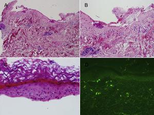 A) Ampolla subepidérmica con escaso infiltrado inflamatorio dérmico (H-E, ×4). B) Suelo dérmico con depósito fibrinoso sin apenas infiltrado inflamatorio asociado (H-E, ×10). C) Epidermis desprendida con desvitalización de la capa basal y queratinocitos necróticos (H-E, ×20). D) Estudio de inmunofluorescencia directa negativo.