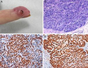 A) Placa eritematosa dolorosa en el dedo, con algunos nódulos y pápulas en su superficie, algunos de ellos erosionados. B) Proliferación de células pequeñas con núcleos redondos e hipercromáticos y escaso citoplasma eosinófilo, que forman cordones inmersos en una matriz basófila. Se observan algunas mitosis. No se observan áreas de diferenciación escamosa. C) Tinción con actina con positividad citoplásmica intensa. D) Tinción S-100 con positividad citoplásmica intensa.
