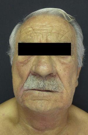 Cuello, región malar izquierda y derecha, surcos nasogenianos y reborde infraorbitario derecho edematosos con un tinte violáceo.