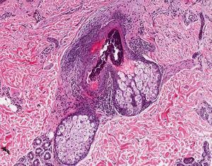 Histopatología de una PF, que muestra un filtrado inflamatorio a predominio de linfocitos perifoliculares (hematoxilina-eosina ×20).