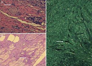 A) Tinción hematoxilina-eosina ×200: se aprecian granulomas y células gigantes multinucleadas. La flecha blanca señala una de las células gigantes multinucleadas. B) Tinción de PAS ×400 en donde se ponen en evidencia hifas de aspecto tortuoso. La flecha blanca señala una de las hifas. C) Tinción de plata ×200, en donde se ponen en evidencia hifas de aspecto tortuoso. La flecha blanca señala una de las hifas.