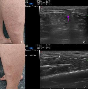 A) Nódulos en cara lateral de la pierna derecha. B) Nódulos en cara lateral de la pierna izquierda. C) Ecografía modo B: protrusión del músculo durante la contracción a través del defecto de la fascia (flecha). D) Ecografía modo B: discontinuidad de la fascia durante la relajación muscular (entre marcadores).