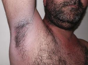 Zona axilar posterior al tratamiento con fototerapia UVBBE. Se puede observar resolución de las lesiones.