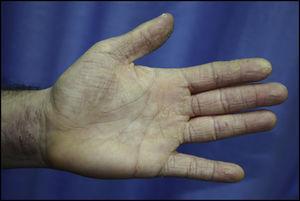Eczema crónico hiperqueratósico que afecta palma, cara palmar de los dedos y cara anterior de la muñeca en profesional de la peluquería con positividad en pruebas epicutáneas a PPD y tiuram.