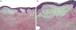 a) Marcada hialinización dérmica y edema superficial (H-E x40). b) Presencia de atrofia epidérmica y vesiculación incipiente (H-E x100).