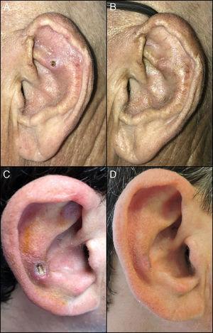 A: caso 1 previo inicio del tratamiento; B: caso 1 tras finalizar tratamiento con diltiazem tópico al 2%; C: caso 2 previo inicio del tratamiento; D: caso 2 tras finalizar el tratamiento con diltiazem tópico al 2%.