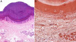 A) Hiperqueratosis ortoqueratósica compacta sobre ligera depresión epidérmica con hipergranulosis (hematoxilina-eosina, ×10). B) Orceína: sin evidencia de elastorrexis ni otras alteraciones dérmicas (orceína, ×20).