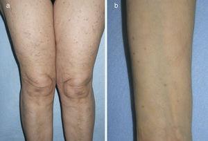 Aspecto clínico de las lesiones de mastocitosis máculo-papulosa en los muslos (a) y en el antebrazo (b).
