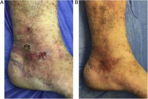 A) Úlcera venosa pretratamiento. B) Resolución completa a las 4 semanas con mejoría de la piel circundante.