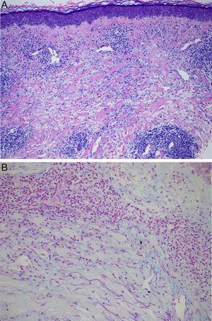 HE×40: denso infiltrado inflamatorio linfohistiocítico intersticial (A). Tinción con azul alcián×100: depósito de mucina entre las bandas de colágeno y toda la dermis (B).