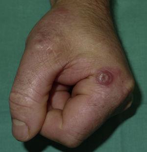 Nódulo solitario circunscrito por un halo eritematoso en la base lateral del segundo dedo de la mano izquierda.