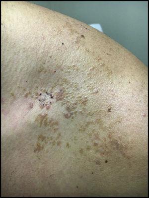 Lesión en zona anterior del hombro con aspecto marrón moteado y áreas eritematosas.