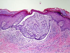 Hematoxilina-eosina, ×10.