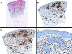 A) Panorámica de la lesión con azul alcián. B) Panorámica mostrando la distribución principalmente perivascular de los linfocitos CD3 positivos. C) Panorámica mostrando que la mayoría de los linfocitos T presentes son CD4. D) Tinción con CD68 mostrando la presencia de macrófagos intersticiales.