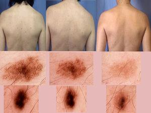 Imágenes clínicas y dermatoscópicas que muestran los cambios en los nevus.