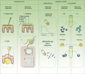 Pruebas complementarias para la identificación del desencadenante en reacciones de hipersensibilidad. TAB: test de activación de basófilos; TTL: test de transformación de linfocitos.