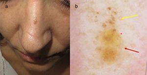 a)Pápula de 4mm en dorso nasal. b)Imagen dermatoscópica con glóbulos marrones en la mitad superior (flecha amarilla), áreas amarillentas sin estructura en la inferior (flecha roja) y vasos lineales regulares (asterisco rojo).