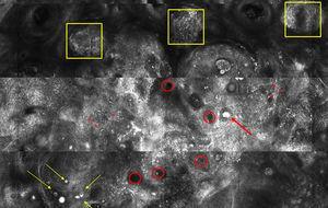 Imagen de microscopía confocal de 2,2×1,4mm. Se observan sebocitos pequeños inmaduros que forman nidos basalioides (recuadro amarillo), escasos sebocitos grandes maduros salpicados (flecha amarilla), conductos sebáceos (círculo rojo), quistes córneos (flecha roja) y abundantes macrófagos (asterisco rojo).