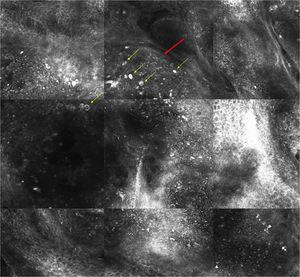 Imagen de microscopía confocal de 1,3×1,25mm. Se observan lóbulos de sebocitos maduros, grandes y brillantes (flecha amarilla) delimitados por una delgada pared de células basalioides (flecha roja).