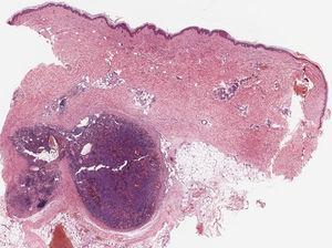 Biopsia cutánea de una de las lesiones de la pierna izquierda. Imagen panorámica que evidencia una lesión nodular bien circunscrita a nivel de dermis profunda e hipodermis (2×; HE).