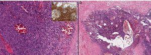 a y b). Imagen histológica a mayor aumento en la que se muestra que el nódulo está constituido por células fusiformes con variable atipia entremezcladas con canales vasculares dilatados e irregulares (10x;HE). c). Las células fusiformes muestran positividad para VHH8 (Anticuerpo monoclonal ORF73/VHH8, 20x).