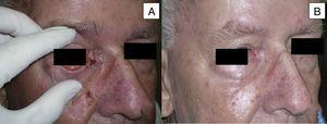 Varón de 73 años con CBC esclerodermiforme de 3×3cm localizado en canto interno (A). Obtiene una respuesta parcial tras 6 meses de tratamiento (B) (caso 6 en la tabla 1).