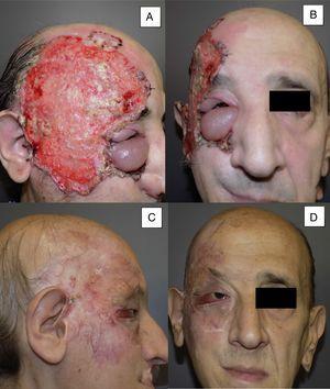 Varón de 53 años con CBC infiltrante ulcerado de 14×10cm localizado en región temporal derecha y órbita derecha con edema palpebral asociado e infiltración de adenopatías (A y B). Tras 8 meses de tratamiento, a nivel clínico parece observarse una respuesta completa al tratamiento (C y D). No obstante, en una biopsia de control realizada durante el seguimiento del paciente, se siguen observando restos tumorales, clasificándose como respuesta parcial (caso 11 en la tabla 1).