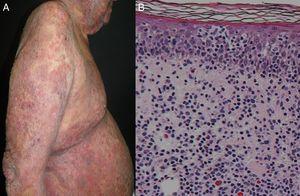 A) Micosis fungoide eritrodérmica. B) La histopatología revela epidermotropismo de linfocitos atípicos, microabscesos de Pautrier e infiltrado dérmico de células neoplásicas (hematoxilina-eosina, x40).