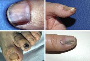 Ejemplo de 4 pacientes con melanoma subungueal que presentaban melanoniquia longitudinal al ser diagnosticados en nuestro Servicio de Dermatología.