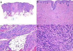 Histología típica de un leiomiosarcoma. a) Visión panorámica de una tumoración dérmica mal delimitada que infiltra al tejido celular subcutáneo. b) A mayor detalle la formación en dermis de fascículos de células fusiformes entrelazadas y distribuidos irregularmente por la dermis y que recuerdan a fibras musculares. c) La tumoración infiltra el tejido celular subcutáneo. d) Fascículos de células fusiformes pleomórficas que se entrecruzan en ángulo recto y la presencia de figuras mitósicas.