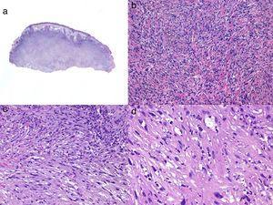Histología de un sarcoma pleomórfico. a) Panorámica de una lesión tumoral que infiltra la dermis e hipodermis. b) Tumor constituido por células fusiformes siguiendo un patrón estoriforme. c) Las células se encuentran inmersas en un estroma mixoide. d) Detalle de algunas células más pleomórficas con citoplasma amplio.