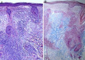 Biopsia de piel facial en la que se observa discreta atrofia epidérmica con moderado infiltrado linfocitario perivascular y perianexial y abundante depósito dérmico de mucina. A) Hematoxilina-eosina ×10. B) Azul alcián ×4.